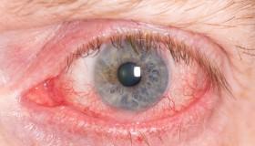 Chyby při nošení čoček vás mohou připravit o zrak