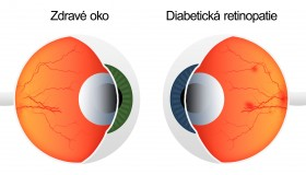 Více než 100 tisíc diabetiků má diabetickou retinopatii