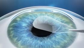 NeoVize certifikovaným pracovištěm pro technologii NeoSmile 3D®