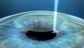 3.generace laserových operací v NeoVizi