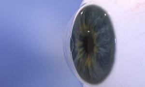 Raindrop - Oční klinika Neovize